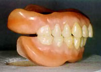 enigma teeth.