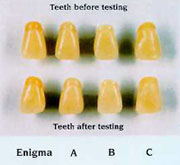 Photo of teeth.